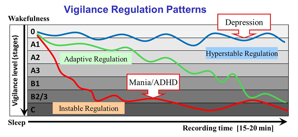 Vigall: Vigilance Regulation Patterns