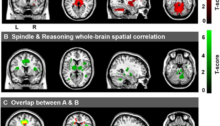 Figure 2. Cerebral activations time-locked to sleep spindles and correlation between spindle-related activation and Reasoning abilities. (A) Activations time-locked to sleep spindles during NREM sleep. (B) Spatial correlation maps between activations time-locked to sleep spindles and Reasoning abilities. (C) Overlap between A (red) and B (green), with the conjunction of A and B shown in yellow. Figure credit: Fang, Ray, Owen & Fogel. (2019). Brain activation time-locked to sleep spindles associated with human cognitive abilities. Frontiers in neuroscience, 13. doi: 10.3389/fnins.2019.00046.