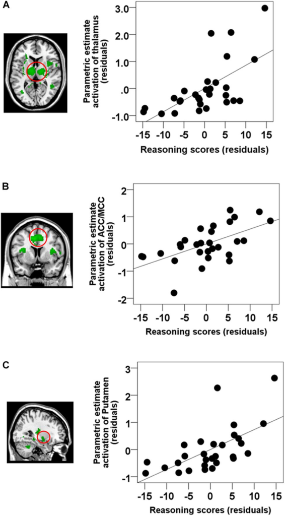 Figure 3. Results of the semi-partial correlation between activations time-locked to spindle events and Reasoning ability. ROI analyses revealed that Reasoning abilities were correlated with activations in (A) the thalamus (partial correlation, r = 0.628, p < 0.001), (B) ACC/MCC (partial correlation, r = 0.585, p = 0.001), and (C) the bilateral putamen (partial correlation, r = 0.616, p = 0.001). Figure credit: Fang, Ray, Owen & Fogel. (2019). Brain activation time-locked to sleep spindles associated with human cognitive abilities. Frontiers in neuroscience, 13. doi: 10.3389/fnins.2019.00046.