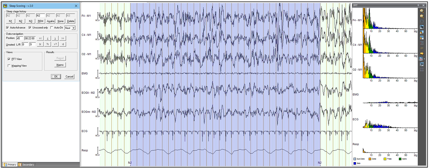 Analyzer Solutions: Figure 1 Sleep Scoring in Analyzer 2 with the display of the frequency data of the current scoring interval.