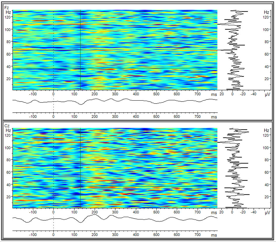 Analyzer Solutions: Figure 2 Stacked Plot view: the solution utilizes the time-frequency view in Analyzer to show multiple stacked trials. For this reason, the label of the ordinate is showing Hz instead of trial number.