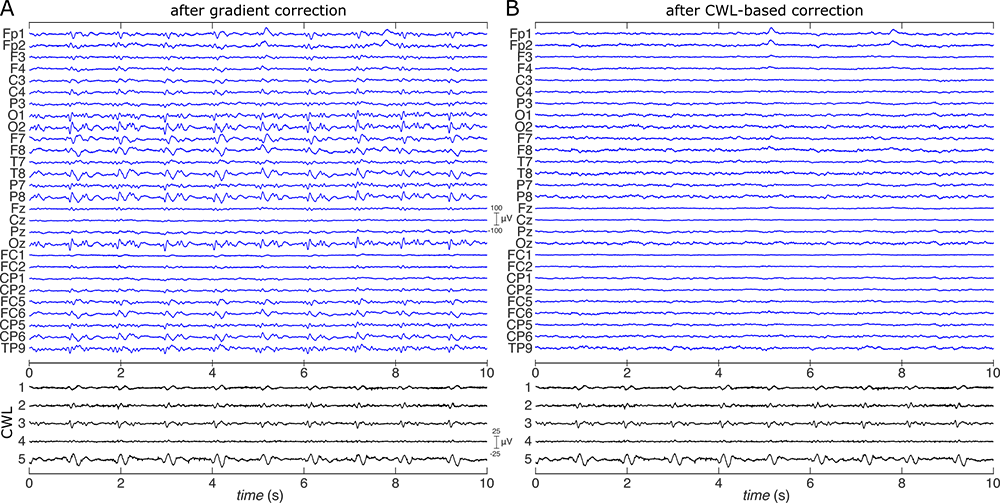 Fig. 1: Example EEG and CWL signal traces before and after CWL-based correction