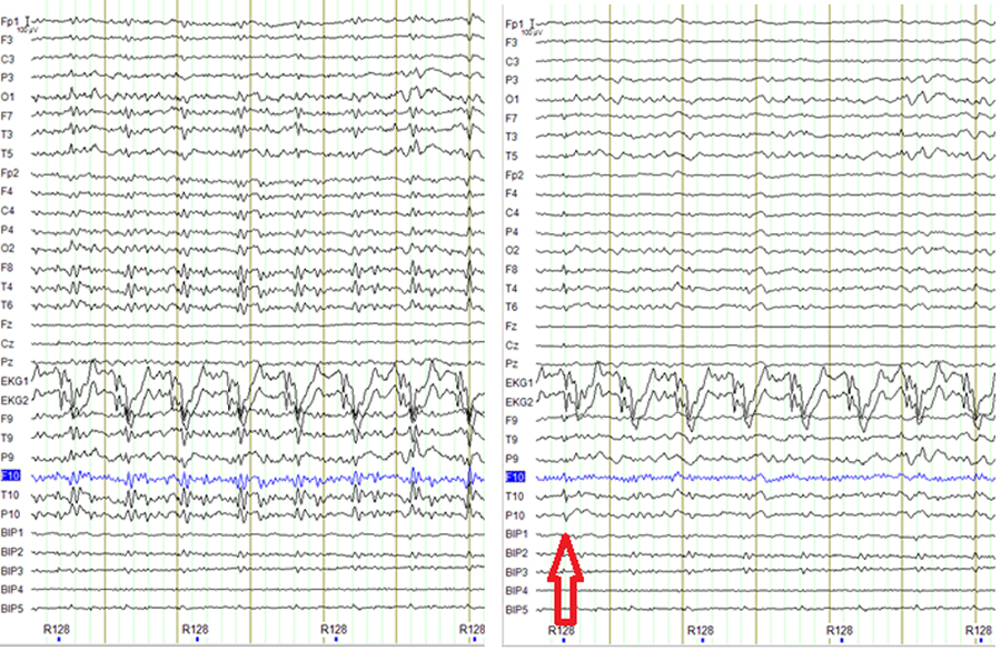 Figure 3: Example showing a possible false positive, sharp activity in F8, T4, T10, P10 that might be not present in the EEG before carbon wire loop correction (on the left panel). This is likely an incomplete correction of a movement artifact given the sharp activity in the EKG channels.