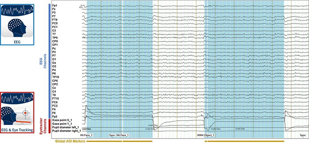 Fig. 5. Example of data display in BrainVision Analyzer 2 after applying the Add Channels transformation. Additional data channels from the eye tracker were added below the EEG channels. Markers for Areas of Interest (AOI) were imported as well and they are visible as global interval markers across all channels.