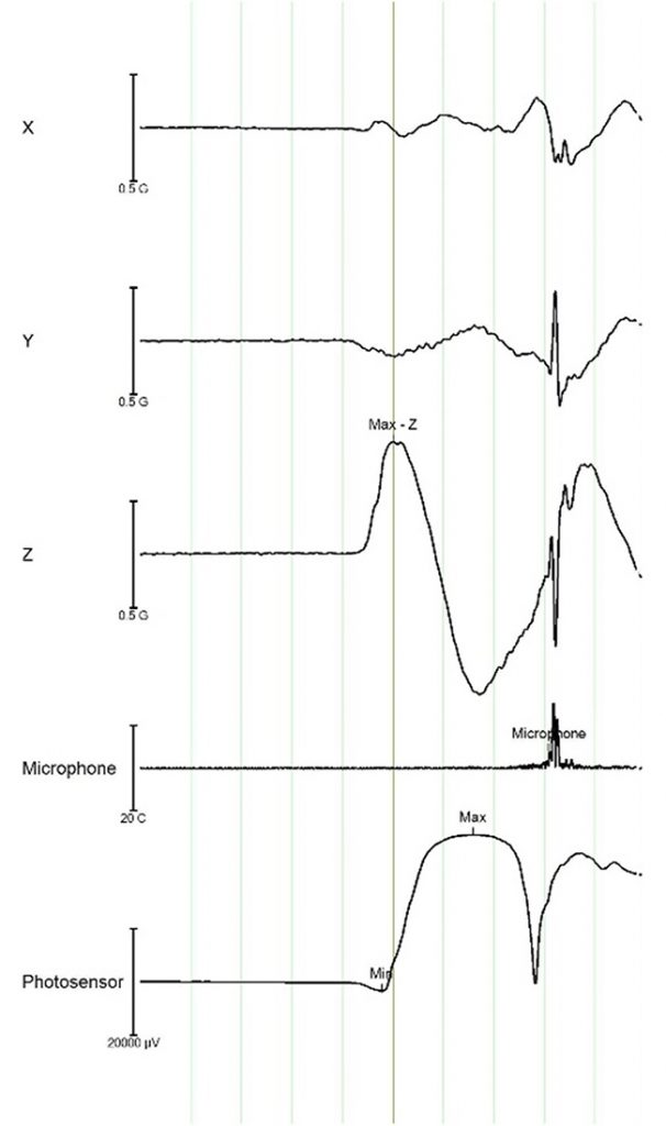 Mobile-EEG Fig.1: The image shows the footprint of a putt in terms of 3D acceleration (specifically, the Z-axis represents the back [negative values] and forth [positive values] movements), microphone (impact of the club with the ball), and photosensor (putter moved away from addressing position). For each of these channels, a marker was generated with dedicated functions in Analyzer, as described in the main text.